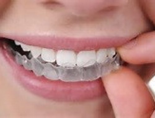 Invisalign Aligner Therapy is Now Even Better Than Ever