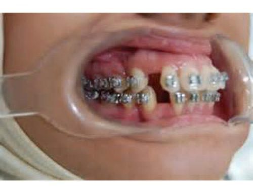 Orthodontic Extractions