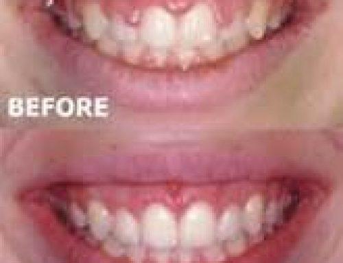 Gum Recontouring